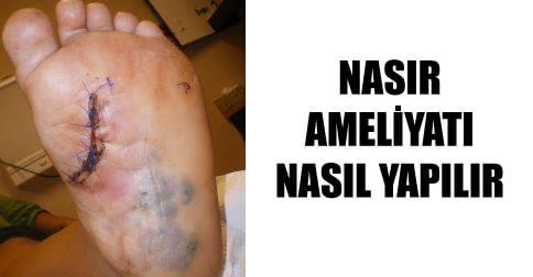 nasir-ameliyati