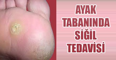 ayak tabanında siğil tedavisi